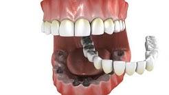All on 6 Dental Implants | Webster TX