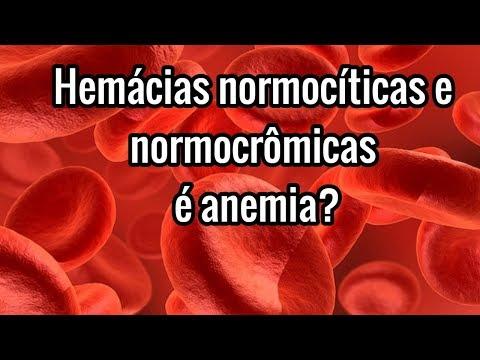 hemácias-normocíticas-e-normocrômicas-é-anemia-?-*leia-a-descriÇÃo*