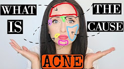 hqdefault - Cause Acne Between Eyebrows