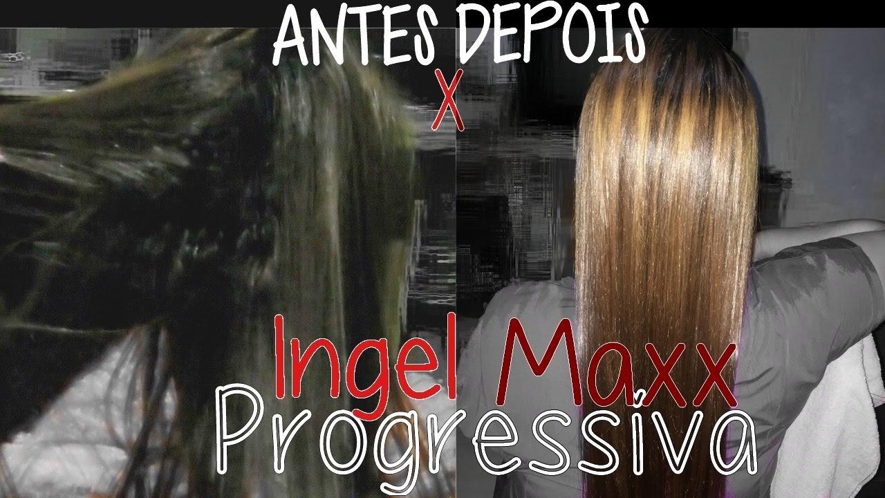 1351957a4 PROGRESSIVA FOREVER LISS INGEL MAXX RESENHA - APLICAÇÃO COM ANTES E DEPOIS  Por Gisele Balreiz