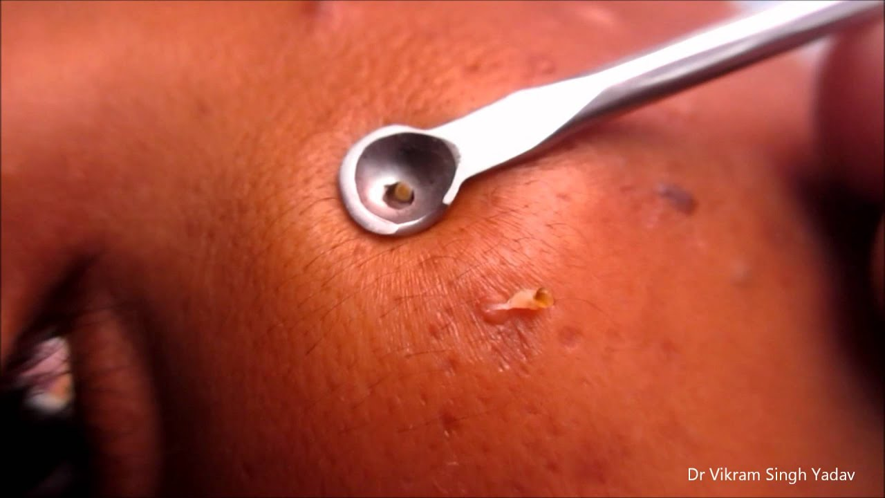 giant blackheads removal - photo #43