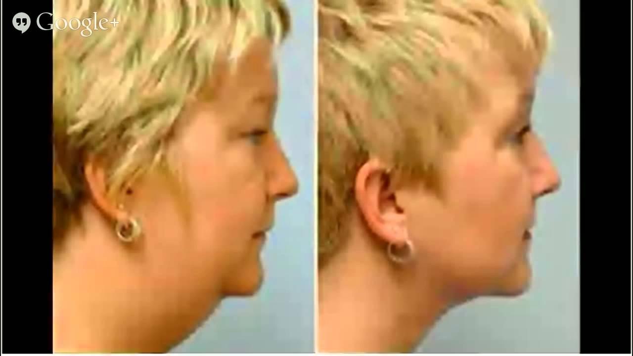 Double Chin Surgery Liposuction, Lipo, HD Lipo, - YouTube