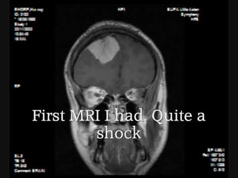 meningioma brain tumor mri. cerebrovascular surgery at qe, Powerpoint templates