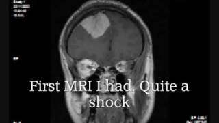 Meningioma Brain Tumor MRI. Cerebrovascular surgery at QE Birmingham UK