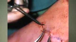A visszér betegség tünetei és kezelése(, 2015-06-05T04:12:23.000Z)