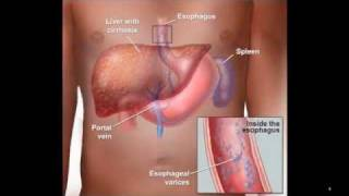 This animation describes tools and tests used to diagnose inflammatory bowel disease (IBD), determin.