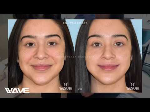 How To Get RID of Smile Lines With Fillers The RIGHT WAY ...