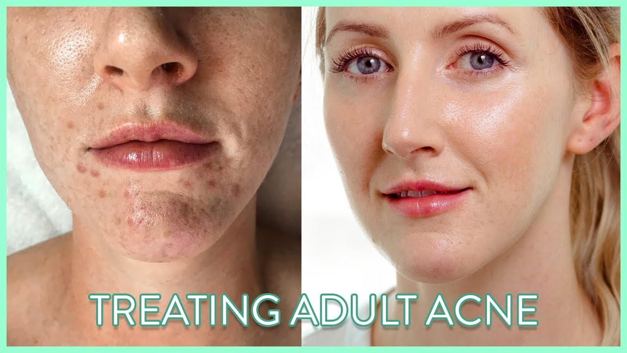 How To Treat Adult Acne | My Experience Healing My Skin #AD ...