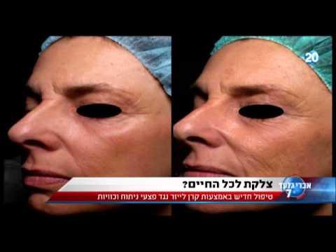 """ד""""ר אודי בר מסביר על טיפולי לייזר פרקציונלי להצערת העור"""