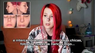 La Rinoplastia FALLIDA de Anastasiya Shpagina - SUB ESPAÑOL ❤ Anita