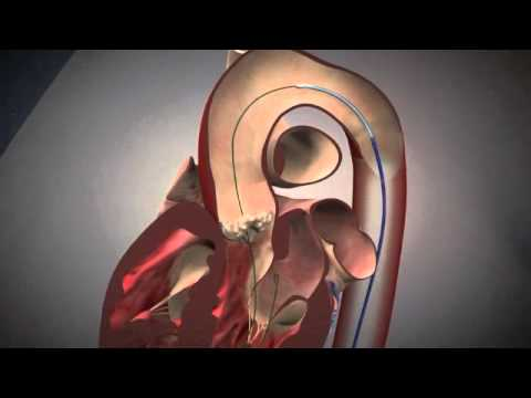 Two Videos Showing Fluoroscopy and Animation of the TAVI Procedure