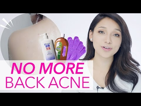 Get Rid of Back Acne/Pimple (in ONE WEEK)| GDiipa