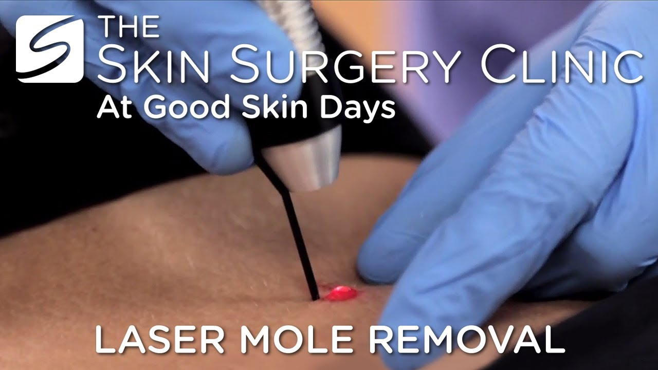 Laser Mole Removal | Watch the Procedure