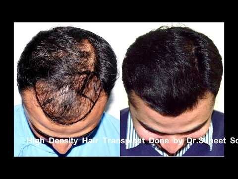 High Density Hair Transplant in India Jaipur Delhi at  Medispa by Dr.Suneet Soni