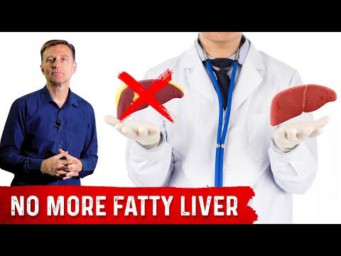 Amazing Fatty Liver Success Story: Dr. Berg