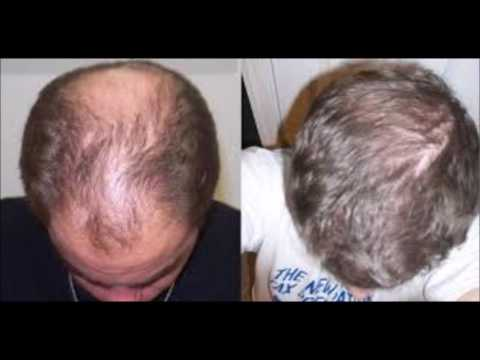 how-long-does-it-take-for-castor-oil-to-grow-your-hair