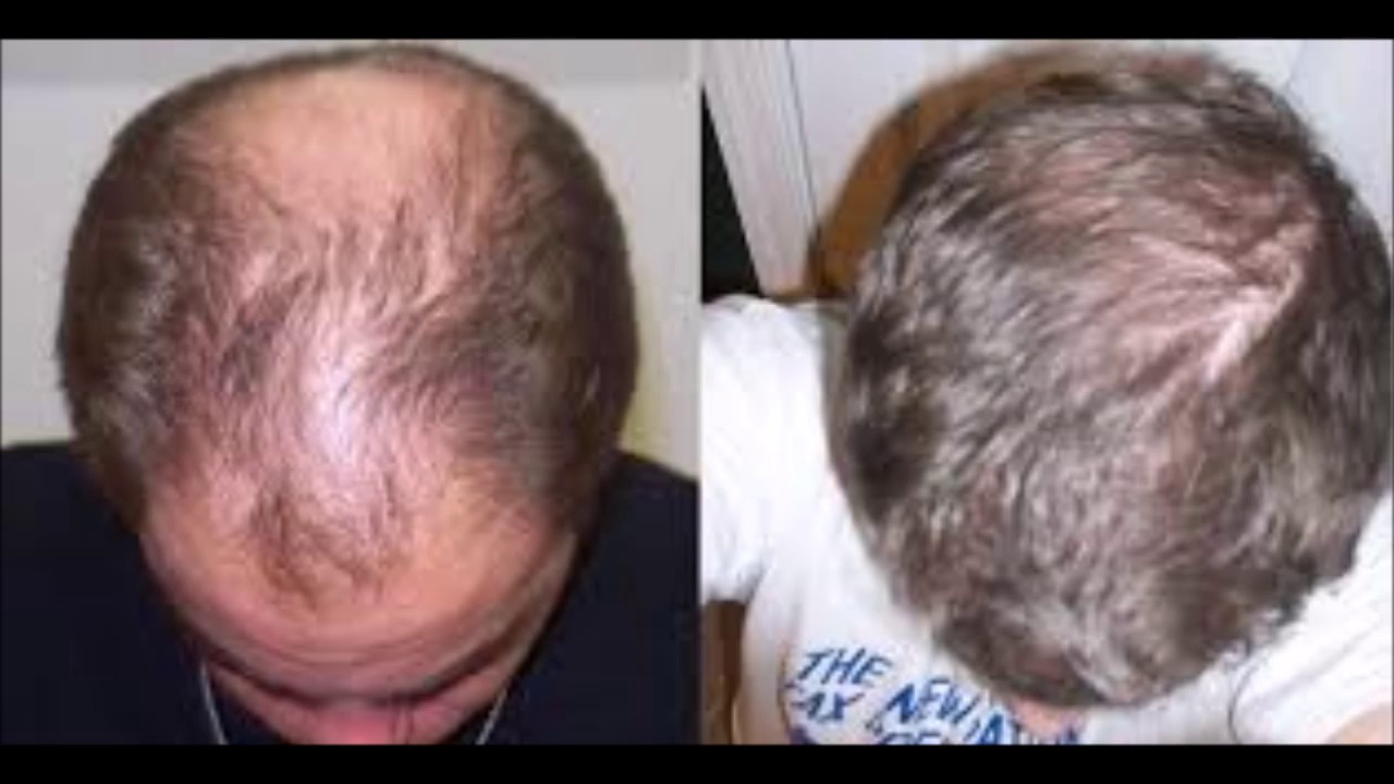 How Long Does It Take For Castor Oil To Grow Your Hair Youtube