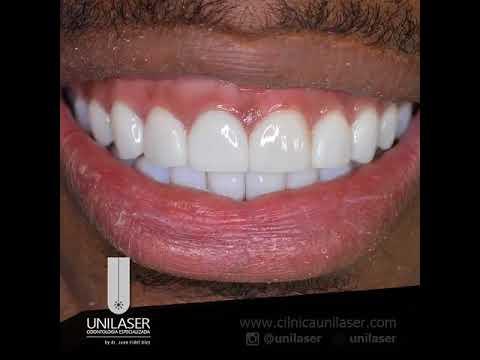 Unilaser | Dise�o de Sonrisa con Corona e-max en un diente central y Lentes Cer�micos