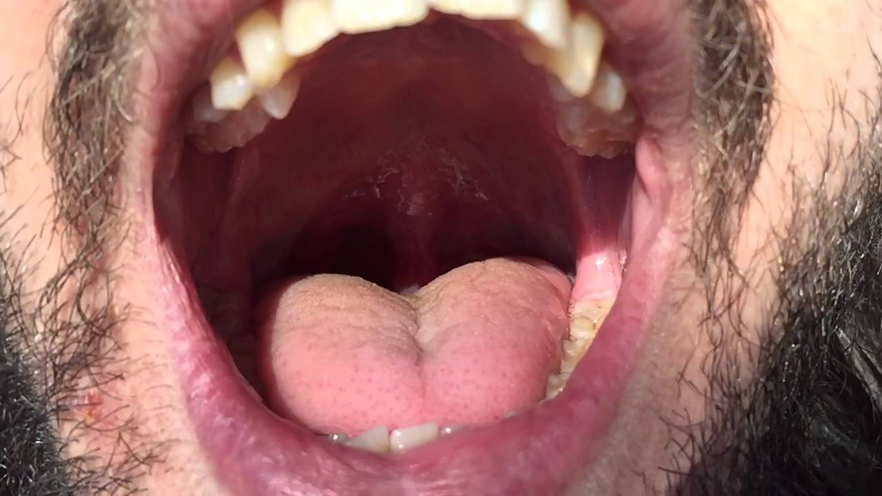 Swollen uvula jiggles in slow-mo - YouTube