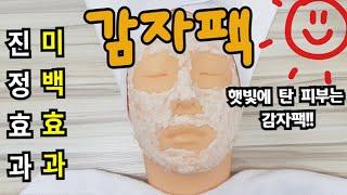 햇빛에 탄 피부를 진정시켜주는 감자팩!!  피부잡티를 …