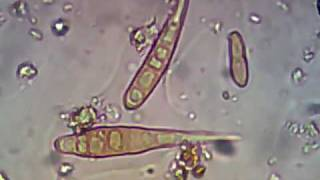Spores Drechslera.avi