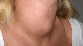 Things you should not do if you are a thyroid patient