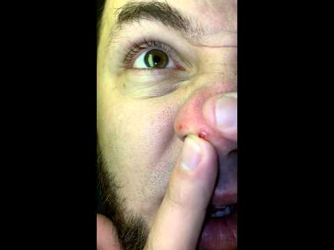 how to get rid of ingrown pimple on nose