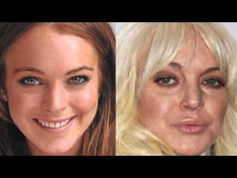 Lindsay Lohan Before and After Plastic Surgery Photos