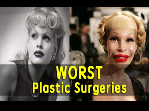 Top 7 Worst Plastic Surgeries Ever Youtube