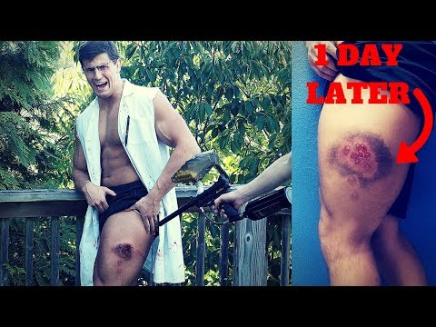 Shot 21 Times in the SAME SPOT with Rubber Paintballs | Crazy Painful Paintball Guns Experiment