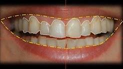 Esthetic Restorative Dentistry - Teaser Video