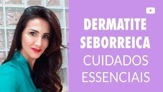 Tópicos seborreica dermatite couro ou agentes para anti-inflamatórios cabeludo face da