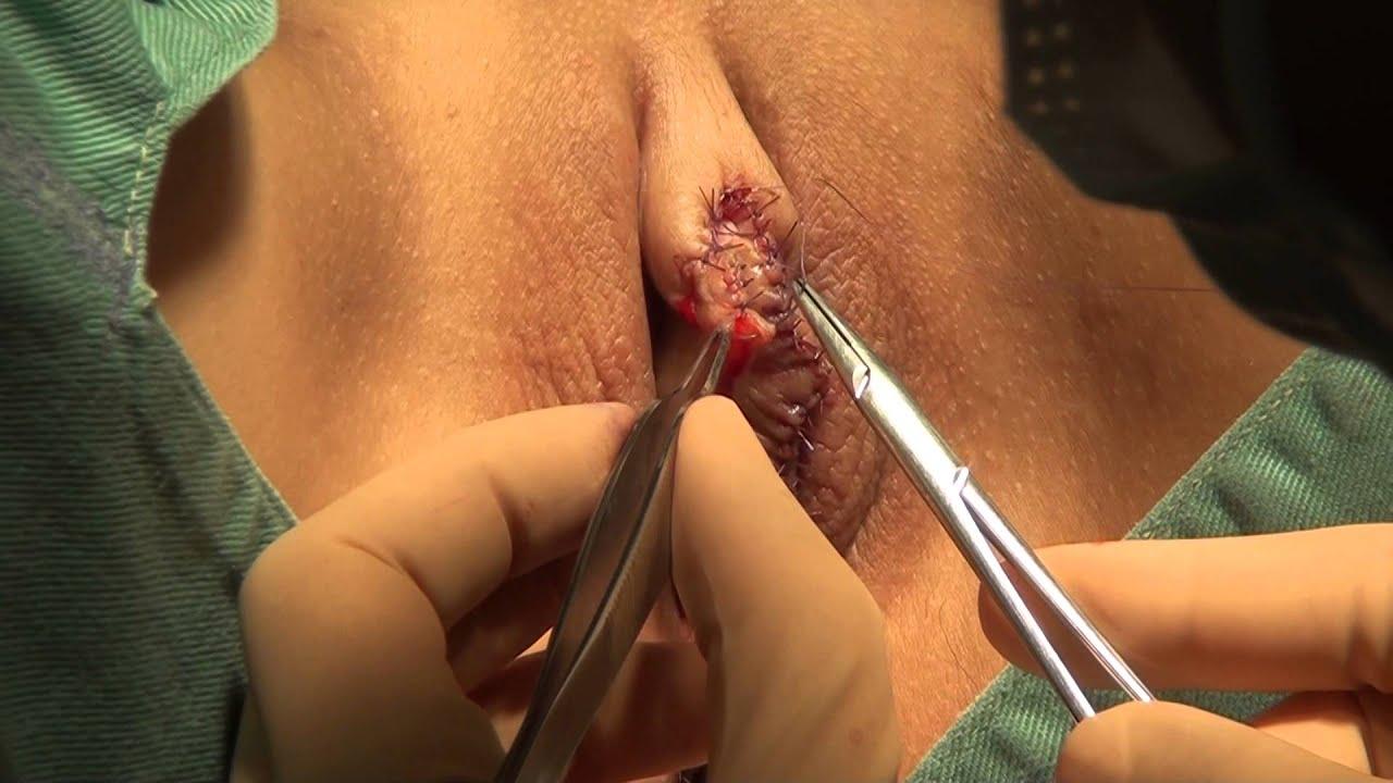 高須クリニック 小陰唇縮小クリトリス包茎手術 手術映像③ 溶ける糸(吸収糸)で傷跡を丁寧に縫合して手術終了 綺麗に整った女性器にします