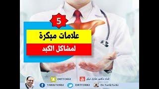 5 علامات مبكرة لمشاكل الكبد | أعراض مبكرة لمشاكل الكبد… فلا تتجاهلها !