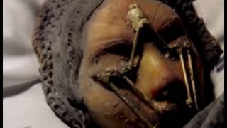 Apollo 20 Secret Mission -  Autopsy of  ´Mona Lisa` ...