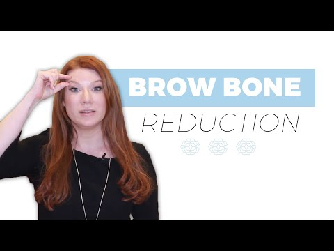 What Is A Brow Bone Reduction