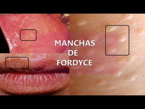 manchas de fordyce en la boca