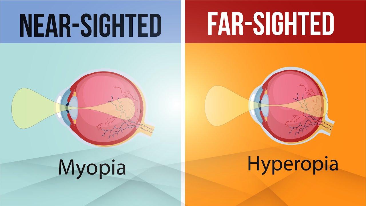 miért fordul elő hyperopia és myopia