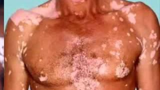 Types of Vitiligo Thumbnail