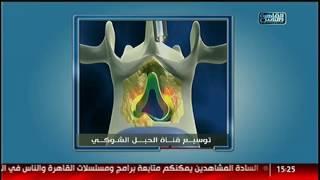 الدكتور | توسيع قناة الحبل الشوكية مع د. يسرى الحميلى