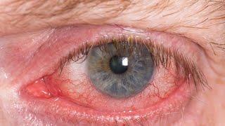 ☀☀☀Rosacea Ocular, Medicina Natural Contra La Rosacea, Crema Para La Rosacea, Rosacea Nariz*