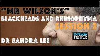 """Session 2: """"Mr Wilson"""" Electrosurgery to resculpt rhinophyma nose"""