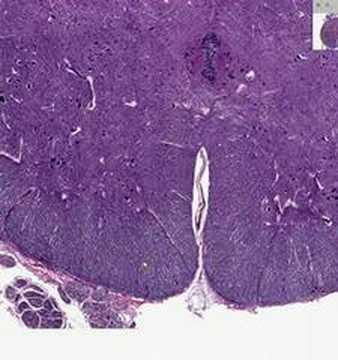 Shotgun Histology Spinal Cord