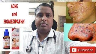 acne/pimple on face (चेहरे के मुहासे) treatment