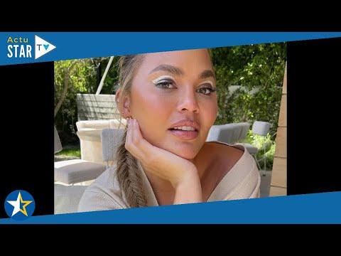 Chrissy Teigen : Nouvelle opération de chirurgie esthétique, elle montre le résultat