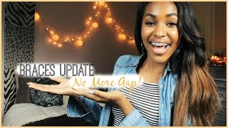 NO MORE GAP! (Braces Update) Thumbnail