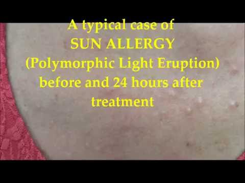 "A case of ""sun allergy"" before and 24 hours after treatment"