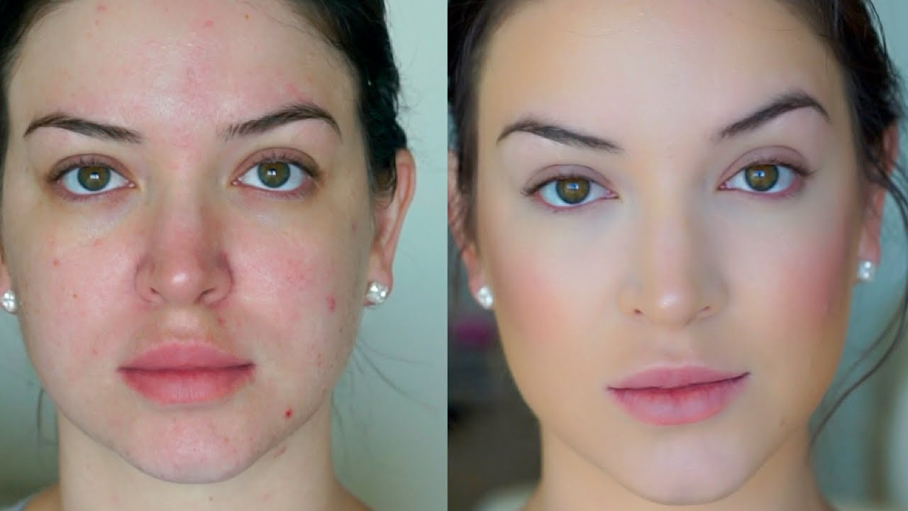 Foundation For Bad Skin Days Quick Easy Youtube - Is-makeup-bad-for-your-skin