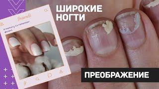 ШИРОКИЕ ногти преображение Наращивание ногтей гелем Как подобрать форму ногтей Светлый маникюр
