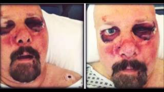 Pro-Pain's Gary Meskil almost beaten to death releases statement ...
